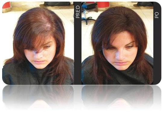 Riešenie pre riedke vlasy - VOLLUMA