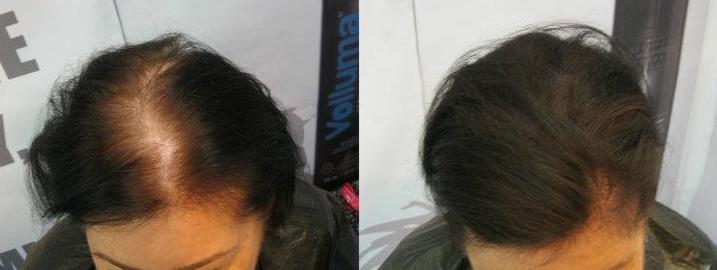 10 Tipov Ako Zastaviť Vypadávanie Vlasov d5eaeba99d2