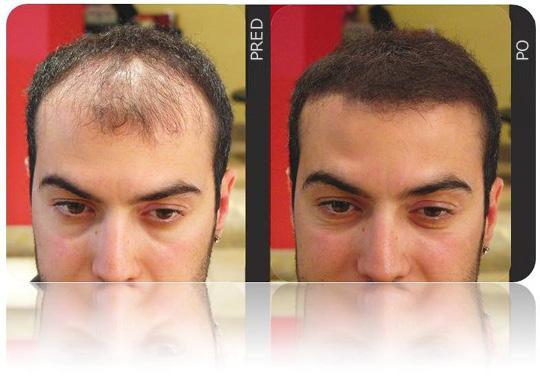 10 Tipov Ako Zastaviť Vypadávanie Vlasov 32e574c726b